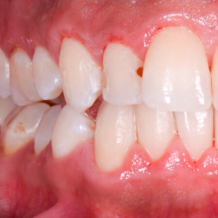 caries detection after gbt