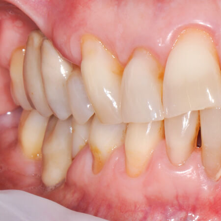 exposed dentin before disclosing gbt