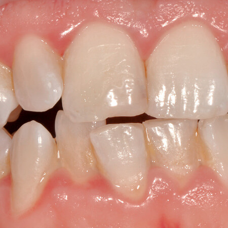 gingivitis before