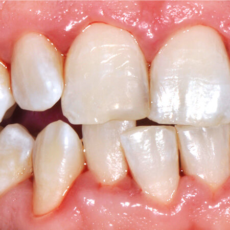 gingivitis after gbt