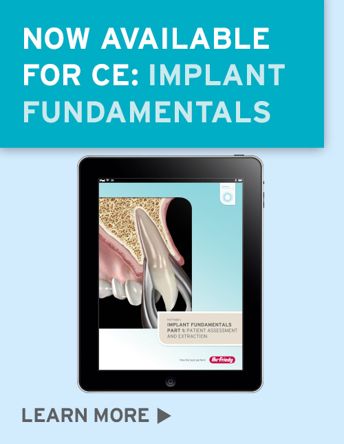 Implant Fundamentals
