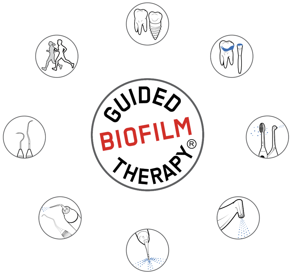 Guided Biofilm Therapy